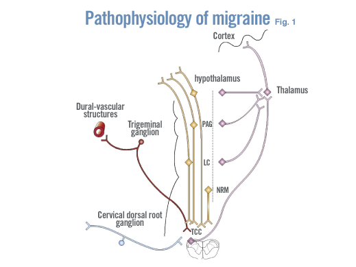 what causes migraine