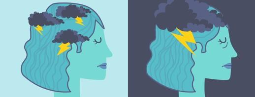 Worsening Episodic Migraine image